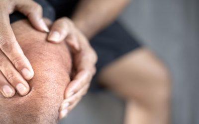El consumo de colágeno puede aliviar el dolor de rodillas [estudio]